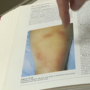 News 10 Speaks to urgent care doctor about Lyme detection