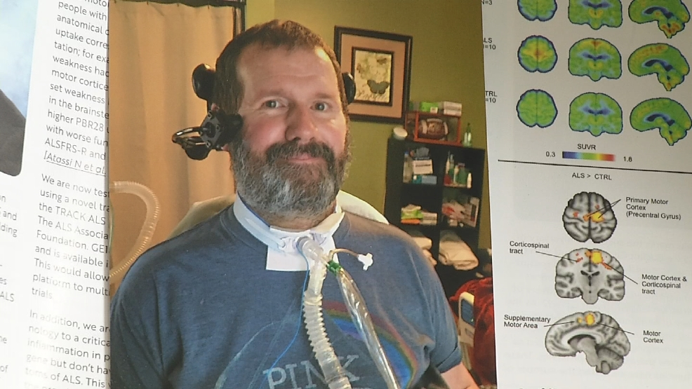 Health Check: New treatment for ALS | WJAR