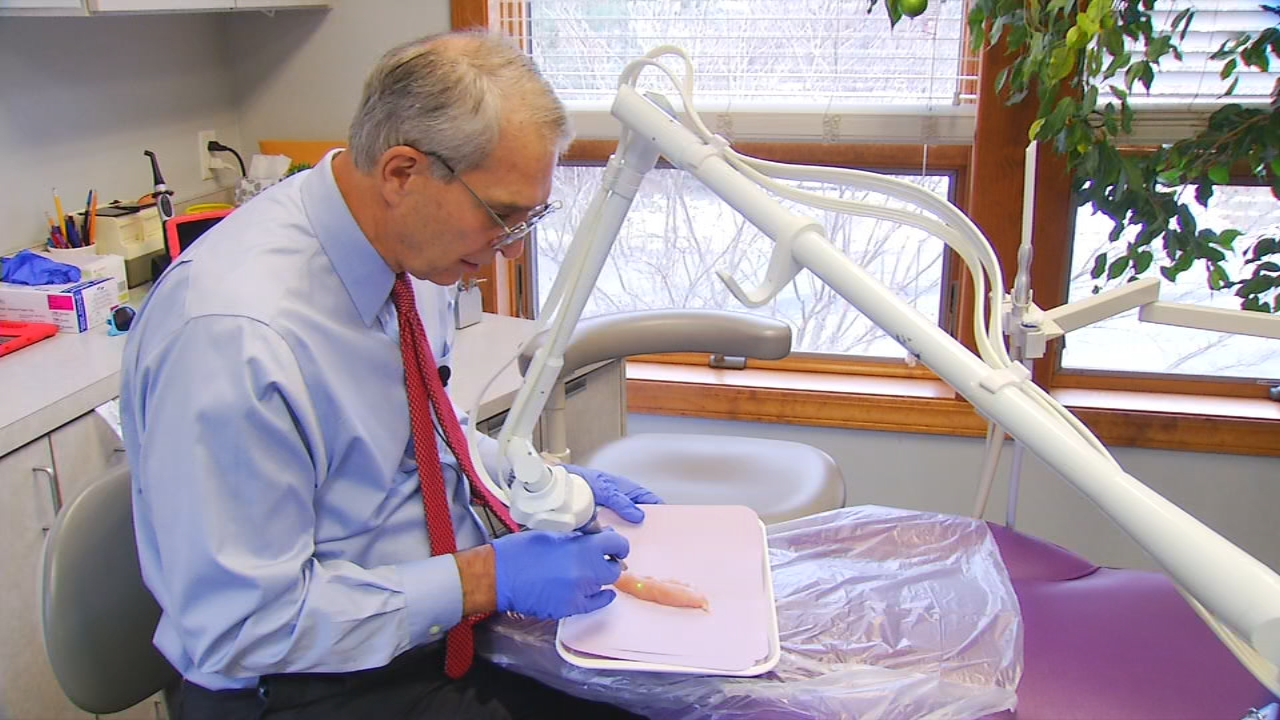 """In about 3 to 10 percent of the infants born, they have an abnormal remnant of tissue of membrane called a frendulum ... and this attaches to the tongue or lip,"" explained Dr. Bill Chambers of Great Beginnings Pediatric Dentistry in Asheville. The frendulum keeps babies from latching to nurse. (Photo credit: WLOS staff)"