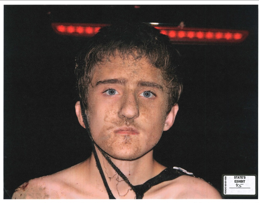 A photograph of Michael Bever's face after his arrest for killing his parents and three siblings. (KTUL)